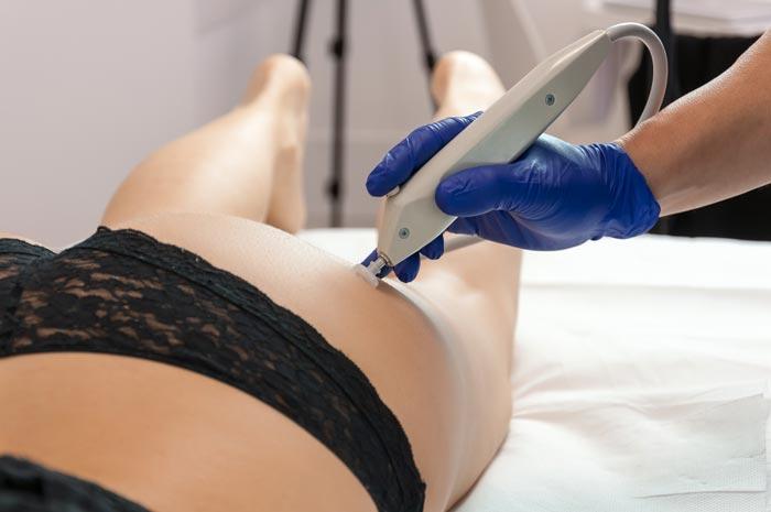 Marco Temporin la carbossiterapia